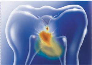 Terapia Neural - Odontontologia Neurofocal